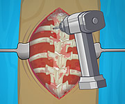 Operate Now Scoliosis Surgery