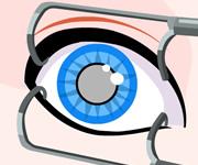 Cinderella Eye Surgery