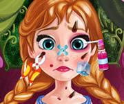 Injured Anna